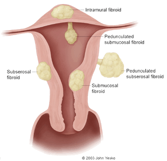Can You Treat Fibroids Naturally